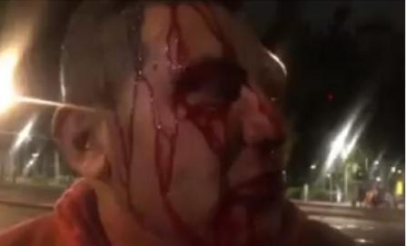 Periodistas de Reforma y TV Azteca denuncian agresión de policías en la Doctores